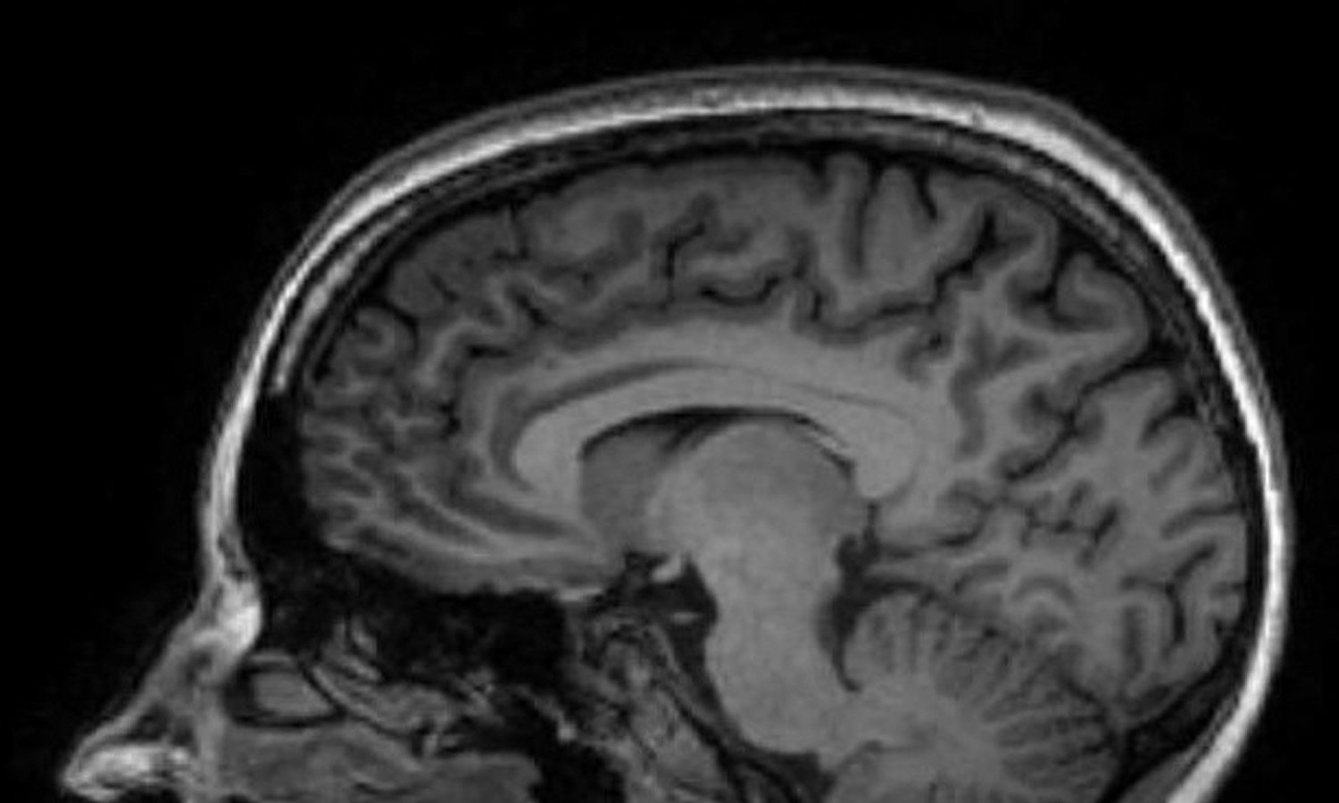 Jane Elizabeth Bennett MRI Scan, Kings College London Autistica
